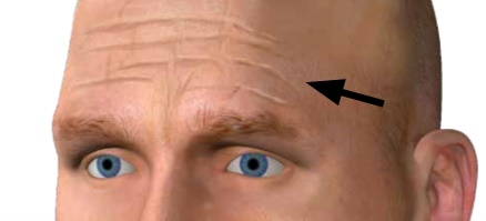 Antlitzdiagnose: Stirnfalten weisen auf Leberprobleme hin