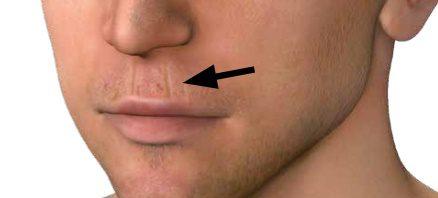 Antlitzdiagnose: Lippenfalten stehen oft im Zusammenhang mit Magenproblemen